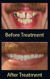 dentures collegeville   Advanced Dentistry of Collegeville