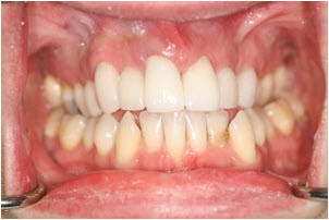 Root canal treatment, gum therapy, whitening, 10 veneers after