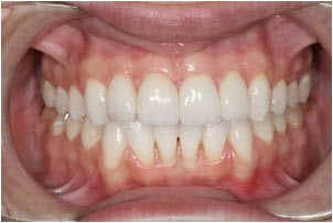 Whitening & 4 Veneers after | Advanced Dentistry of Collegeville
