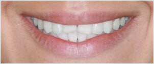 Whitening & 4 Veneers before | Advanced Dentistry of Collegeville