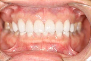 Whitening and 8 veneers after | Advanced Dentistry of Collegeville