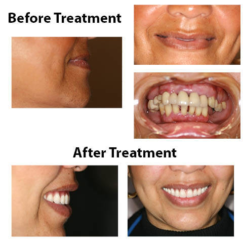 restoration dentistry | Advanced Dentistry of Collegeville