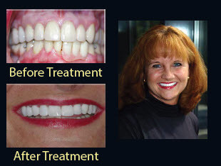 denture replacement collegeville | Advanced Dentistry of Collegeville