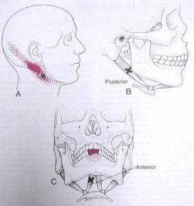 Digastric