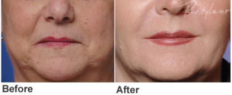 botox | Advanced Dentistry of Collegeville