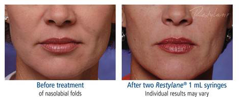 restylans dermal filler | botox Advanced Dentistry of Collegeville