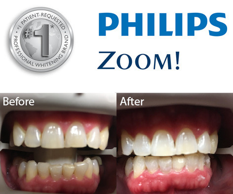 Zoom Teeth Whitening Collegeville Advanced Dentistry Of