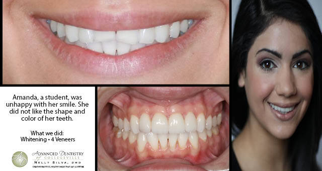 Teeth Whitening Veneer Collegeville | Advanced Dentistry of Collegeville