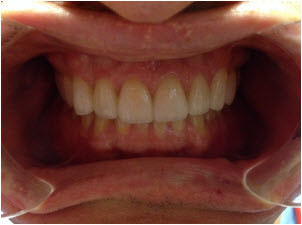 Completed 10 upper veneers after | Advanced Dentistry of Collegeville