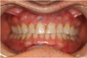 Completed 10 upper veneers before   Advanced Dentistry of Collegeville