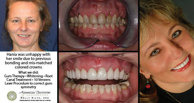 TMJ Treatment Gum Lift Collegeville | Advanced Dentistry of Collegeville