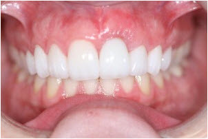 Whitening, Gum Treatment, 8 Veneers after   Advanced Dentistry of Collegeville