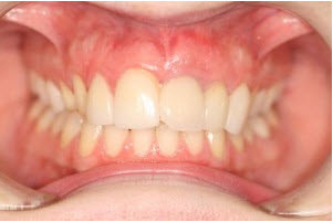 Whitening, Gum Treatment, 8 Veneers before | Advanced Dentistry of Collegeville