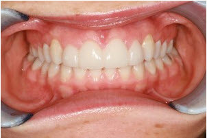 Whitening and 4 veneers after (2) | Advanced Dentistry of Collegeville