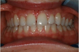 Whitening and 4 veneers before (2) | Advanced Dentistry of Collegeville