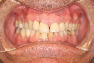 Whitening and 8 veneers before 1   Advanced Dentistry of Collegeville