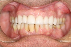Whitening and 8 veneers after 1 | Advanced Dentistry of Collegeville