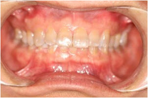 Whitening and 8 veneers before 2   Advanced Dentistry of Collegeville