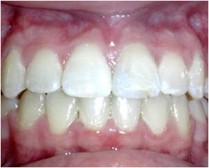 Straight Teeth After Braces Collegeville | Advanced Dentistry of Collegeville