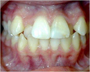 Crooked Teeth Before Braces Collegeville | Advanced Dentistry of Collegeville