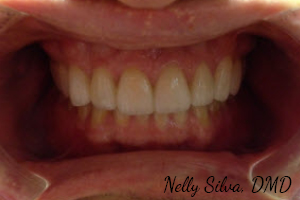 Completed 10 upper veneers   collegeville advanced dentistry