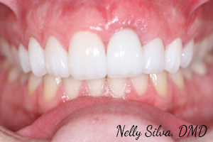 Implants and crowns   collegeville advanced dentistry