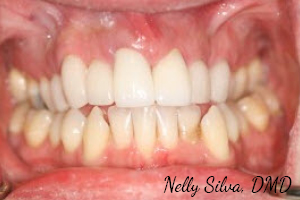 Root canal treatment, gum therapy, whitening, 10 veneers   collegeville advanced dentistry