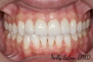 Whitening & 4 Veneers   collegeville advanced dentistry