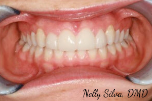 dental veneers after pics   collegeville advanced dentistry