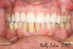 veneers   collegeville advanced dentistry