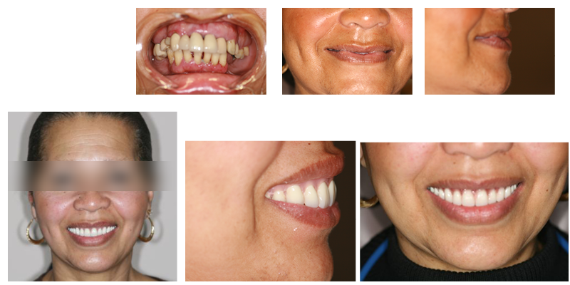 dental implants advanced Dentistry of Collegeville patient case