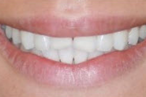 veneers collegeville